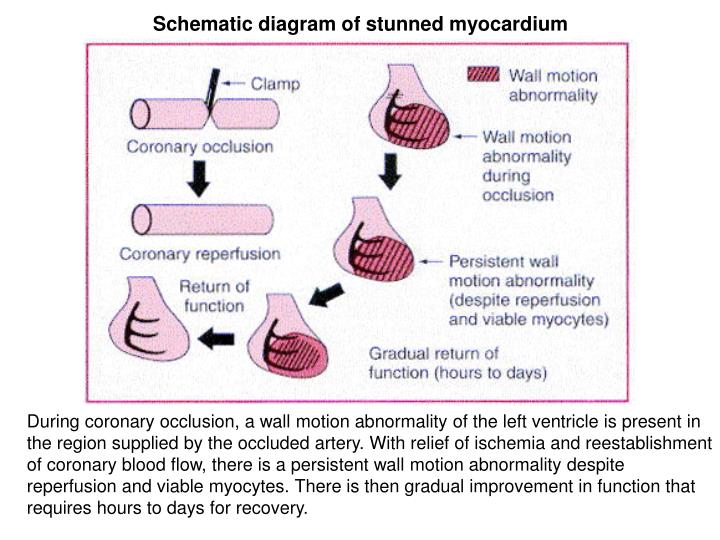 Schematic diagram of stunned myocardium