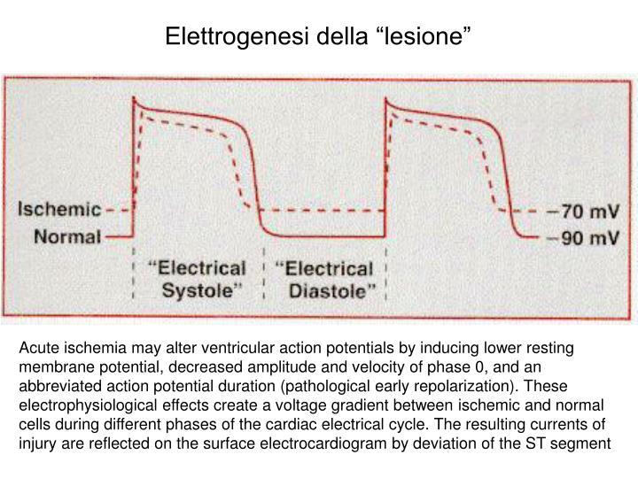 """Elettrogenesi della """"lesione"""""""