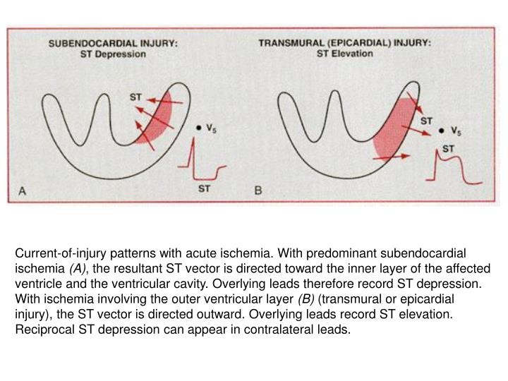 Current-of-injury patterns with acute ischemia. With predominant subendocardial ischemia