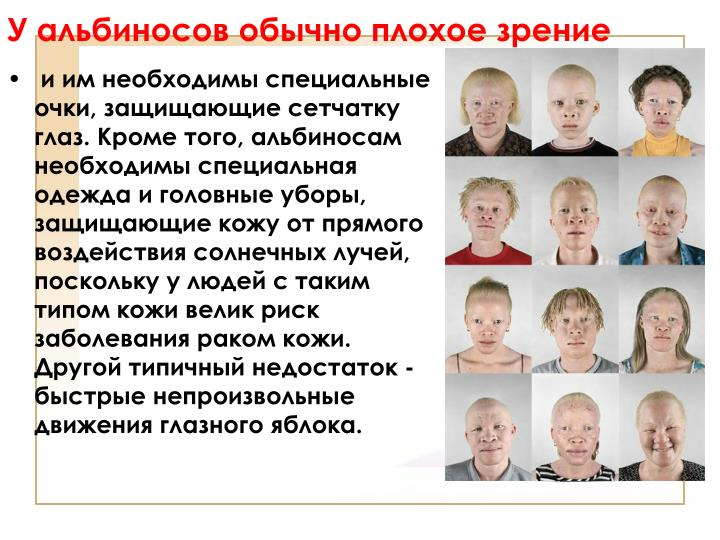 У альбиносов обычно плохое зрение