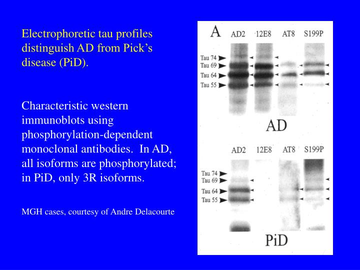 Electrophoretic tau profiles distinguish AD from Pick's disease (PiD).