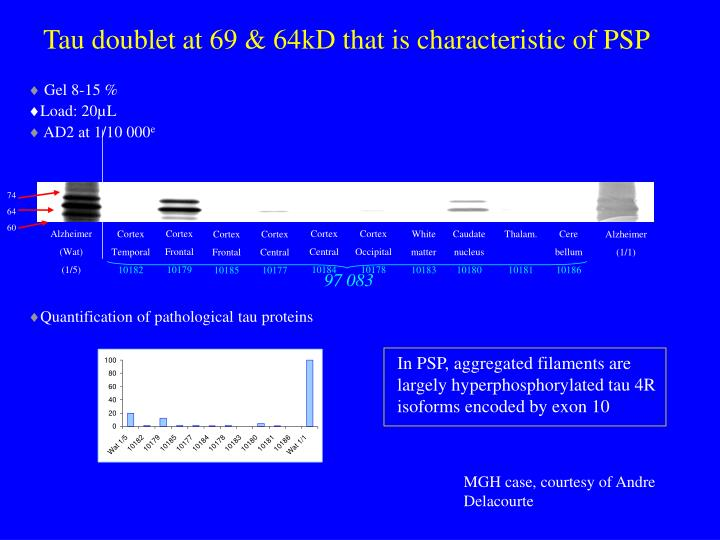 Tau doublet at 69 & 64kD that is characteristic of PSP