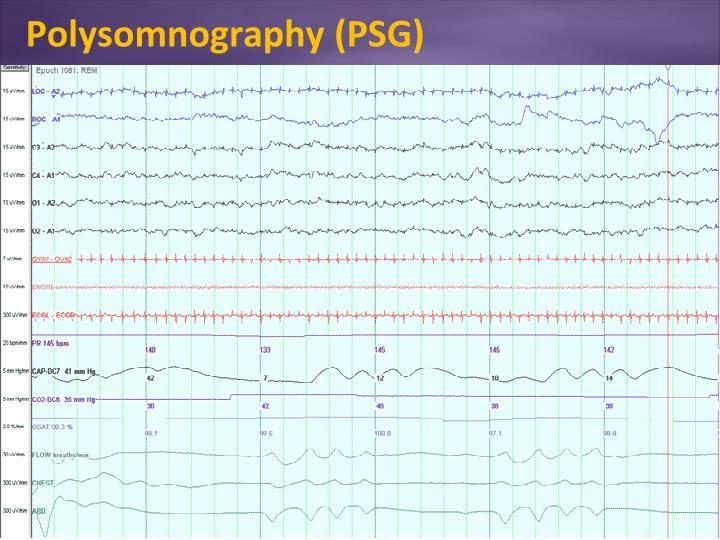 Polysomnography (PSG)