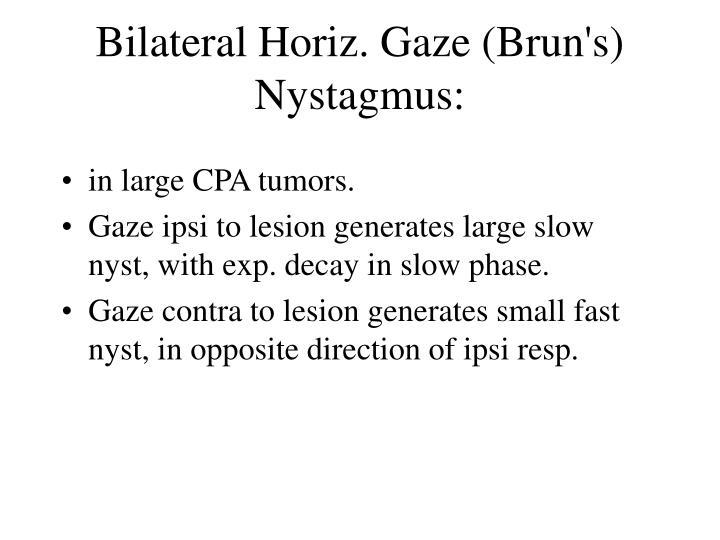 Bilateral Horiz. Gaze (Brun's) Nystagmus: