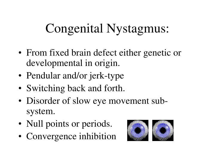 Congenital Nystagmus: