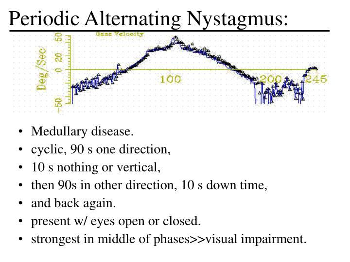 Periodic Alternating Nystagmus: