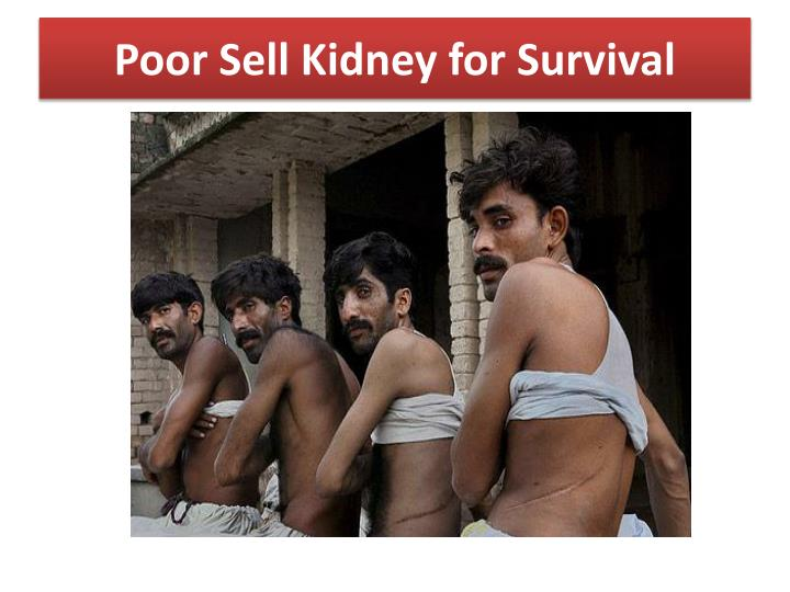Poor Sell Kidney for Survival