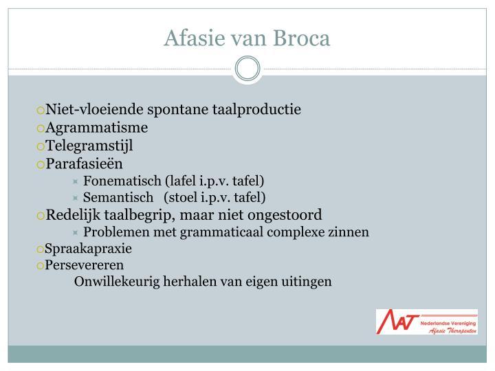 Afasie van Broca