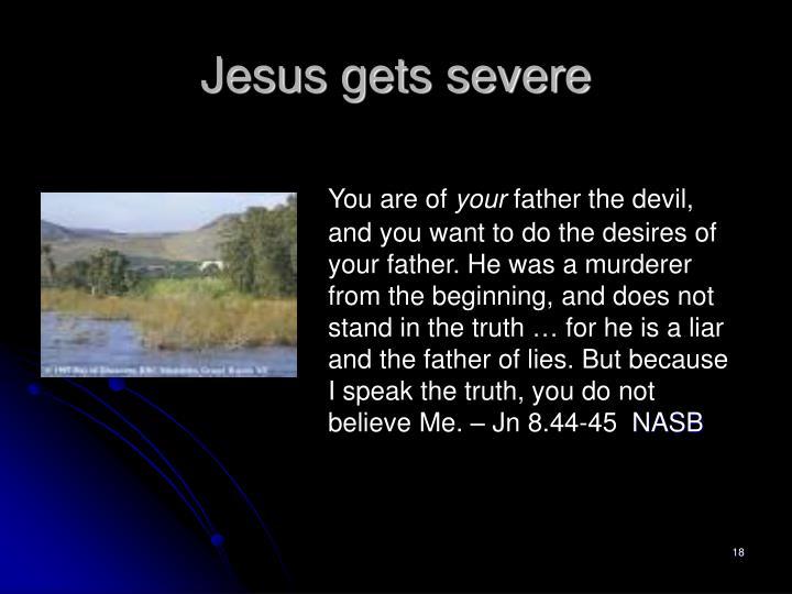 Jesus gets severe