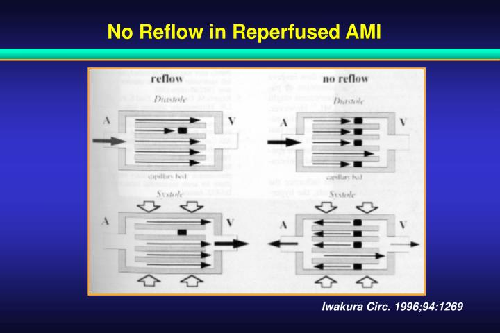 No Reflow in Reperfused AMI