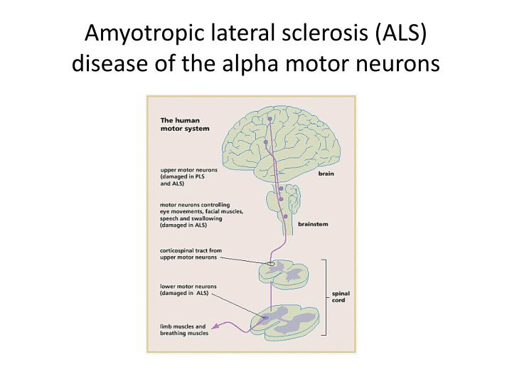 Amyotropic lateral sclerosis (ALS)