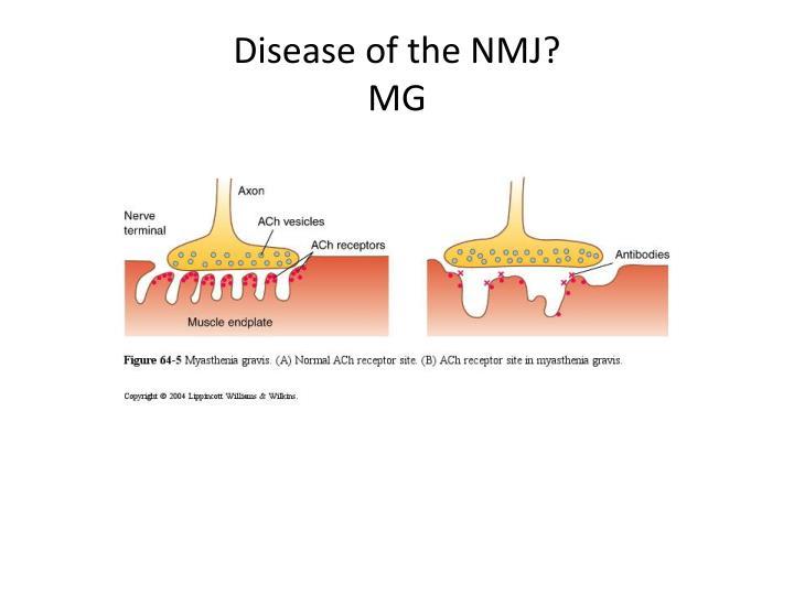 Disease of the NMJ?