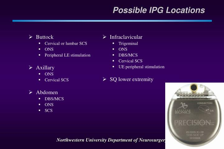 Possible IPG Locations