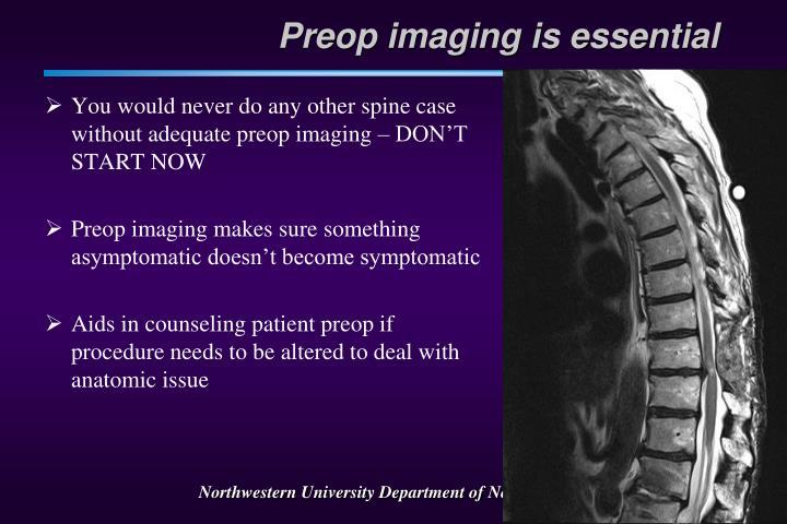 Preop imaging is essential