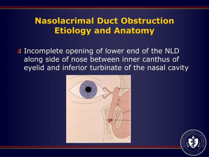 Nasolacrimal Duct Obstruction Etiology and Anatomy