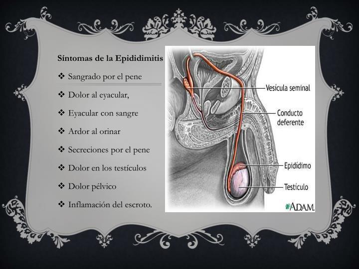 Síntomas de la Epididimitis