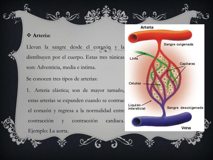 Arteria: