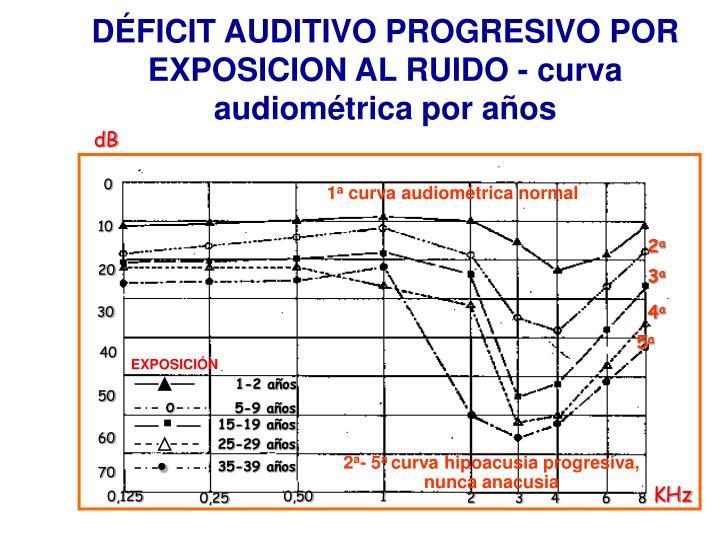DÉFICIT AUDITIVO PROGRESIVO POR EXPOSICION AL RUIDO - curva audiométrica por años