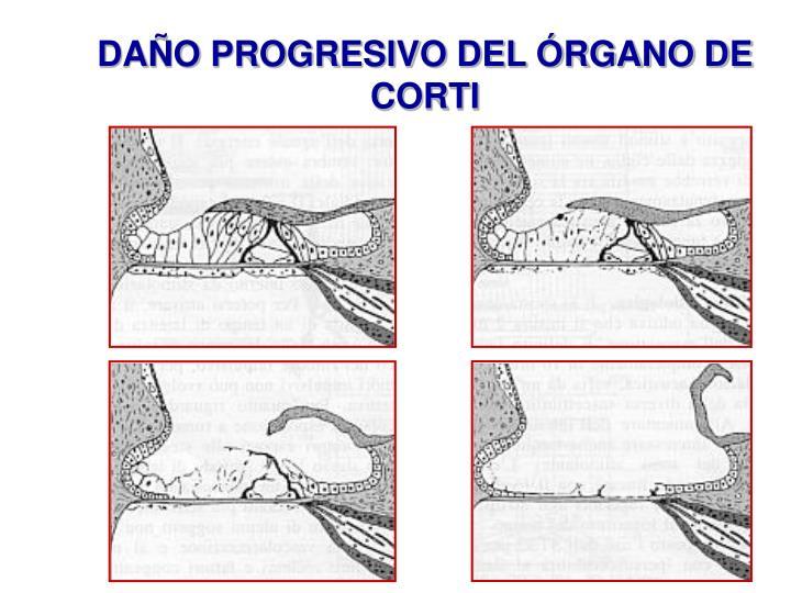 DAÑO PROGRESIVO DEL ÓRGANO DE CORTI