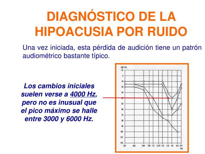 DIAGNÓSTICO DE LA HIPOACUSIA POR RUIDO