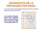 diagn stico de la hipoacusia por ruido