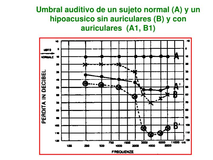 Umbral auditivo de un sujeto normal