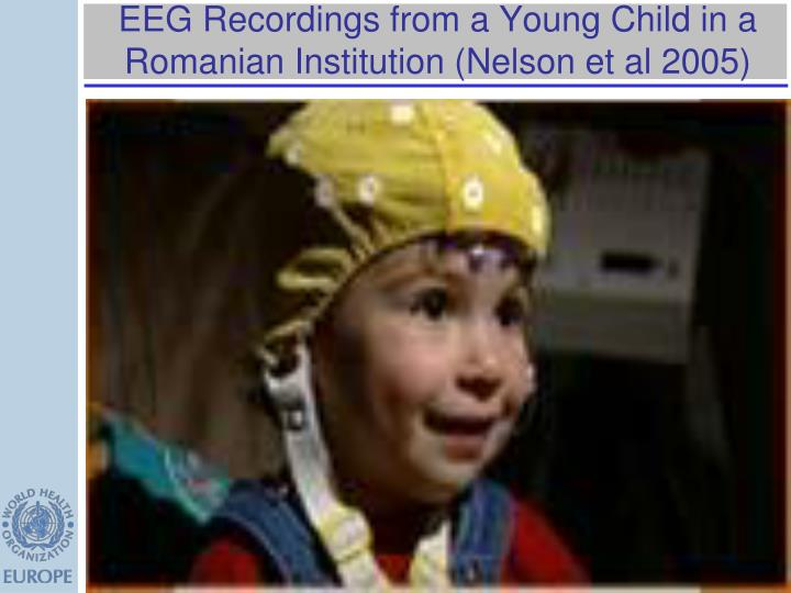 EEG Recordings from a Young Child in a Romanian Institution (Nelson et al 2005)