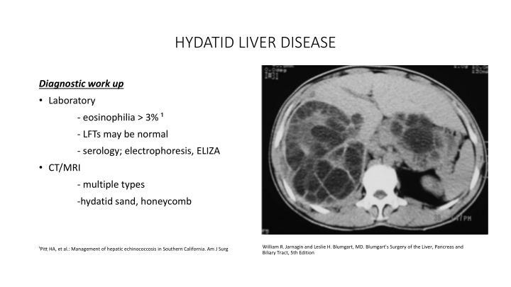 HYDATID LIVER DISEASE