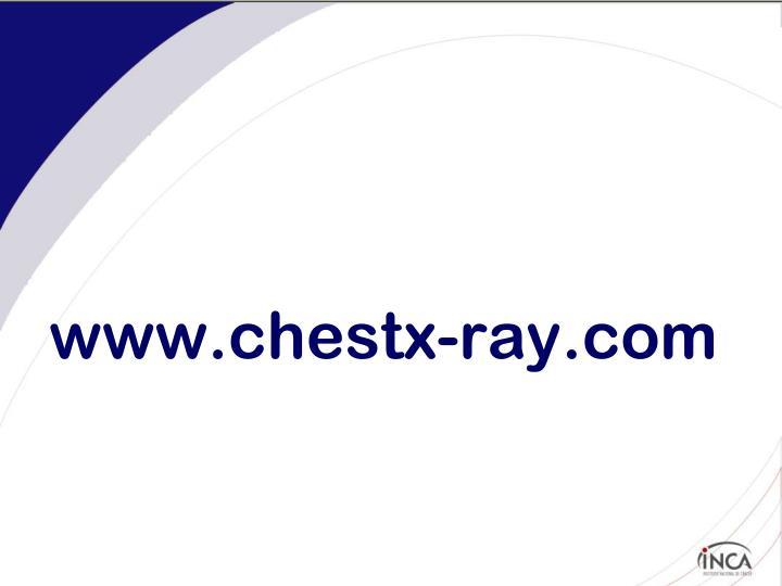 www.chestx-ray.com