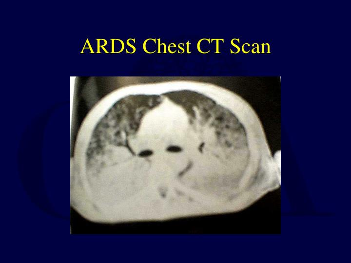 ARDS Chest CT Scan