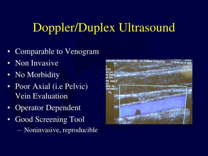 Doppler/Duplex Ultrasound