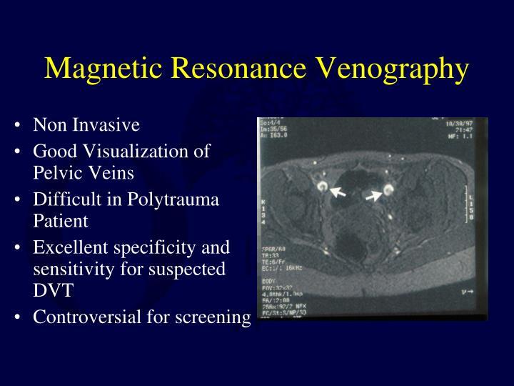 Magnetic Resonance Venography