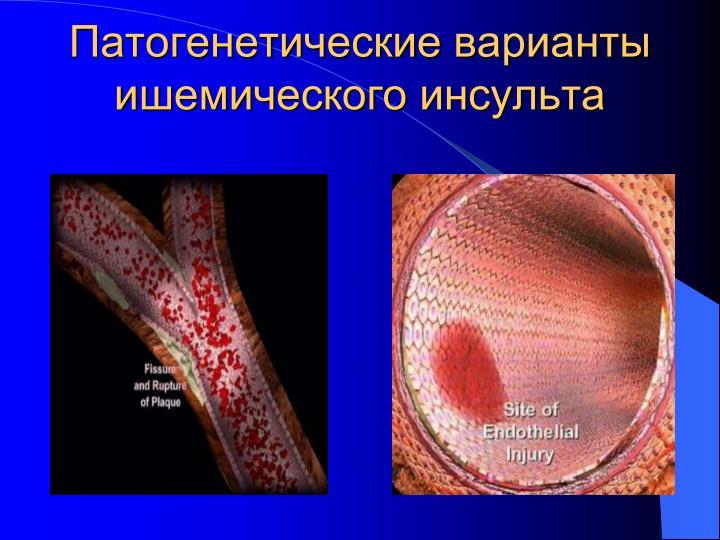 Патогенетические варианты ишемического инсульта