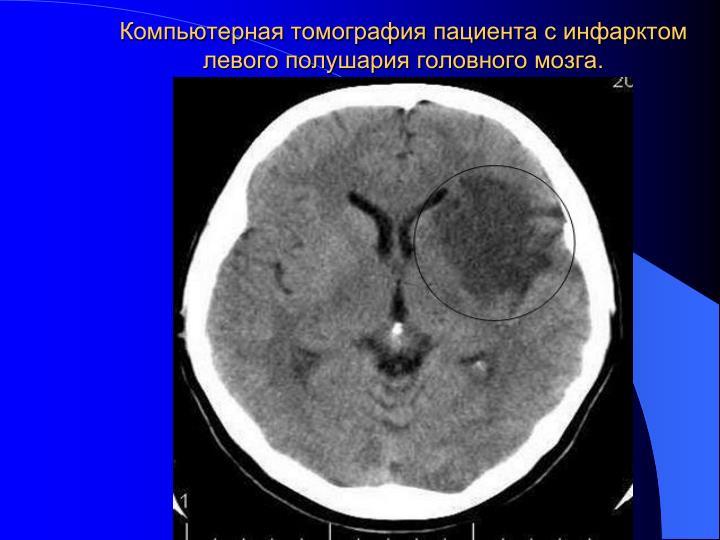 Компьютерная томография пациента с инфарктом левого полушария головного мозга.