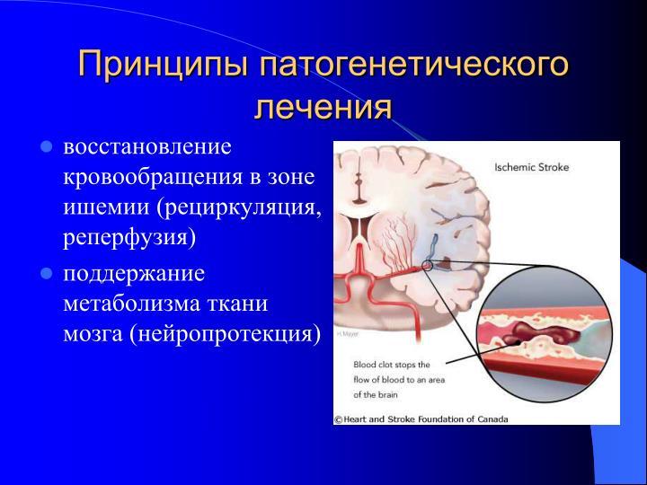Принципы патогенетического лечения