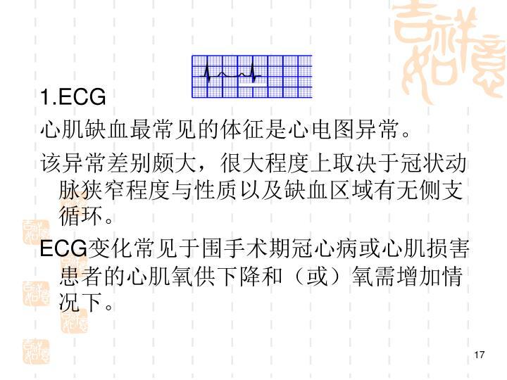 1.ECG