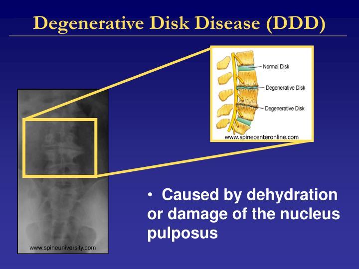 Degenerative Disk Disease (DDD)
