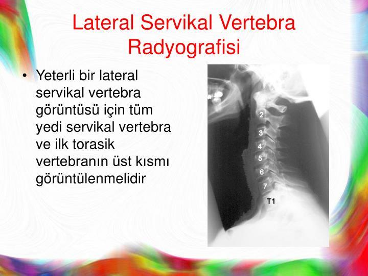 Lateral Servikal Vertebra Radyografisi