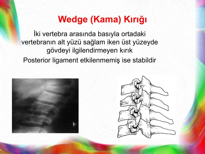 Wedge (Kama) Kırığı
