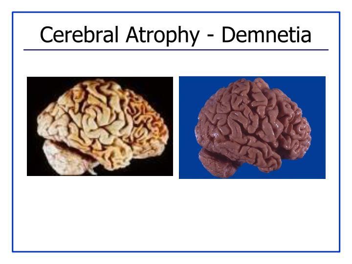 Cerebral Atrophy - Demnetia