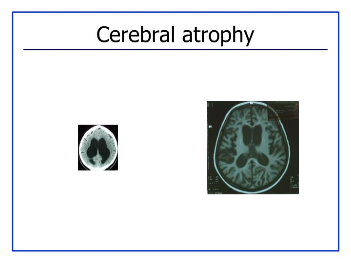Cerebral atrophy
