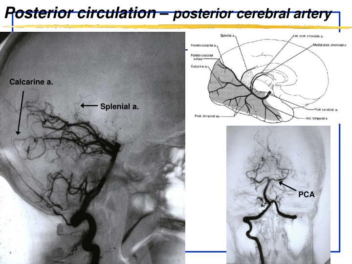 Posterior circulation –
