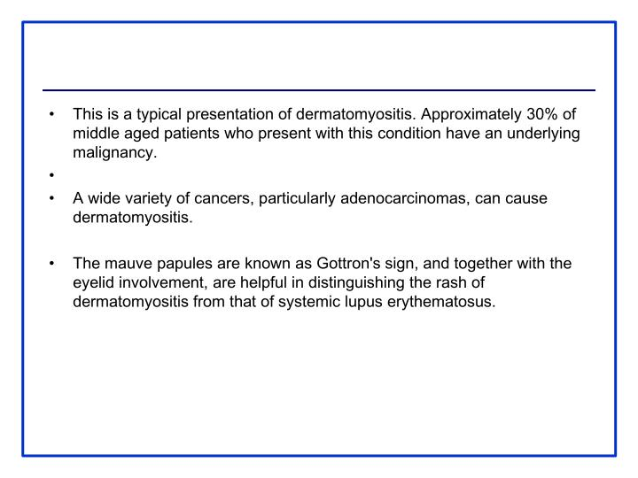 This is a typical presentation of dermatomyositis. Approximately 30% of middle aged patients who present with this condition have an underlying malignancy.