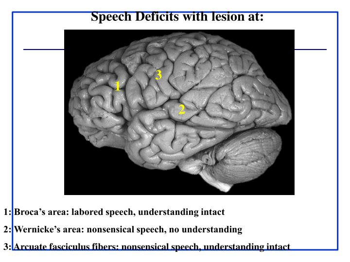 Speech Deficits with lesion at: