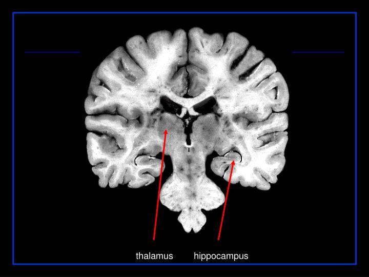 thalamus        hippocampus