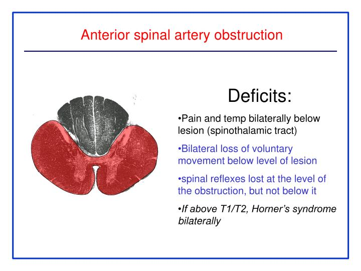 Anterior spinal artery obstruction
