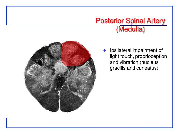 Posterior Spinal Artery