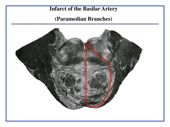Infarct of the Basilar Artery