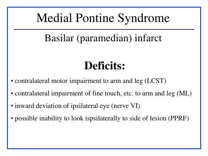 Medial Pontine Syndrome