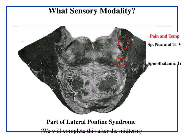 What Sensory Modality?
